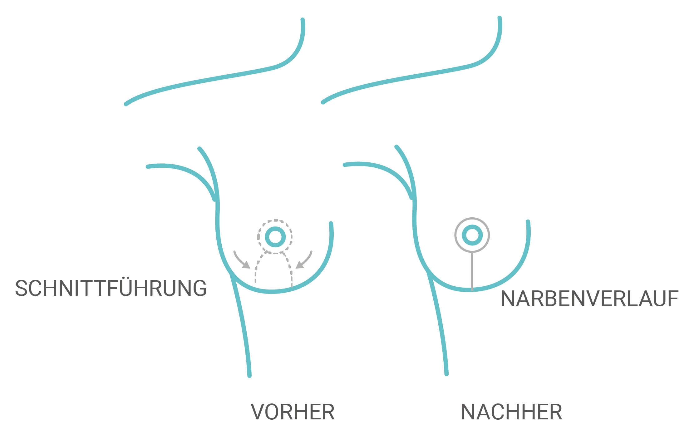 I-Schnitt-Technik