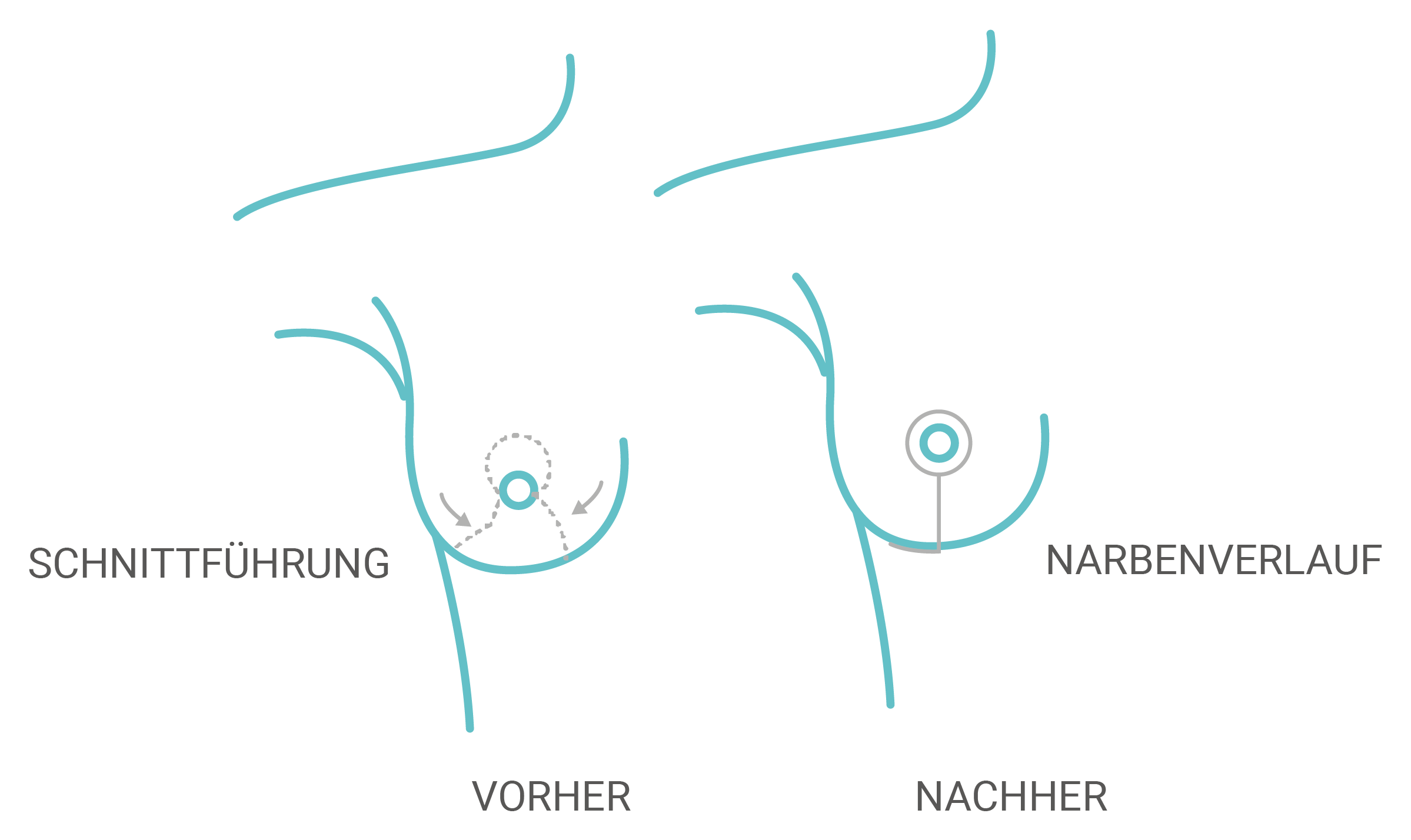 L-Schnitt-Technik