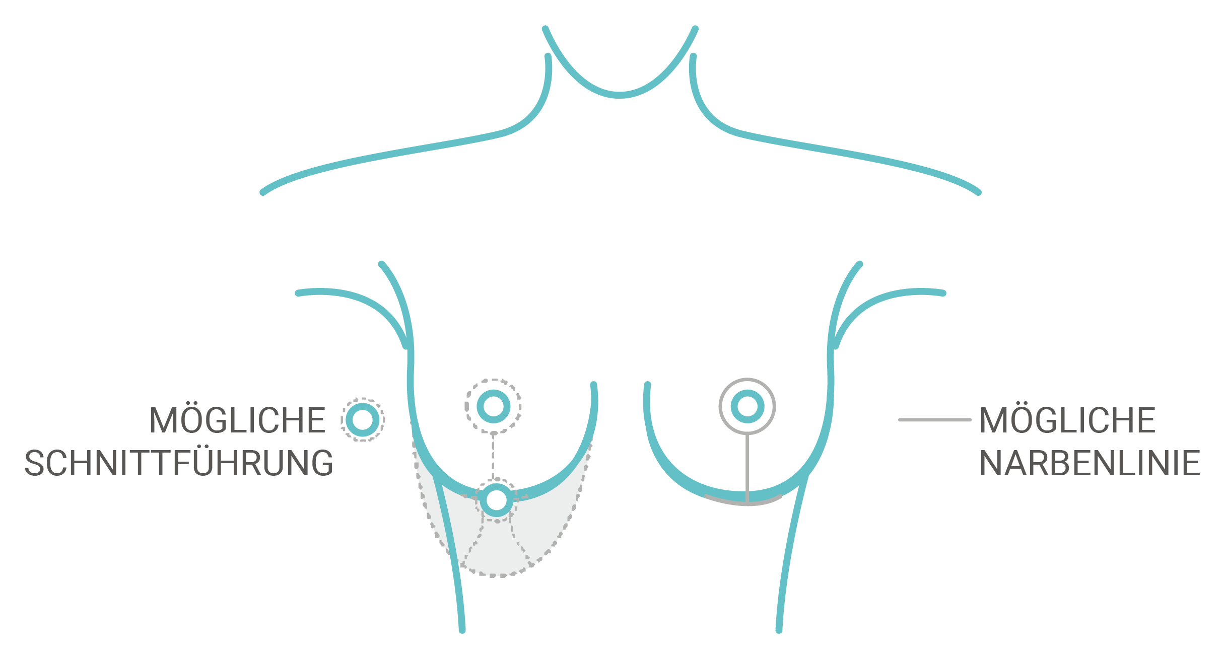 innerer-BH-Bruststraffung